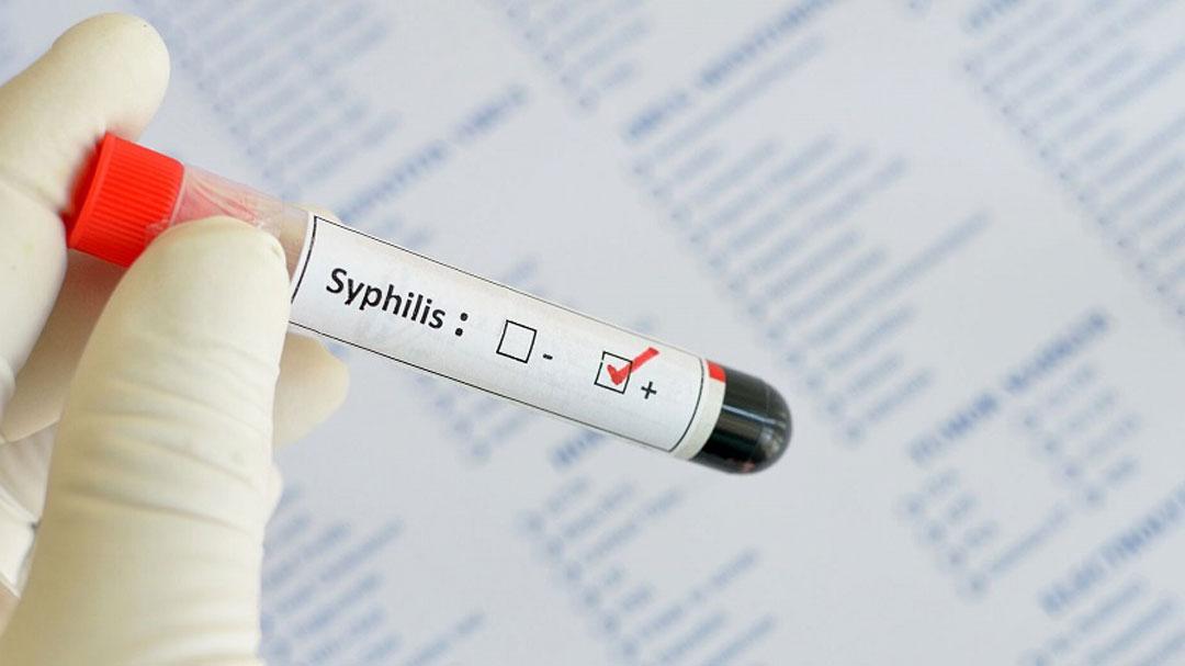 سیفلیس (Syphilis)