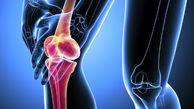 چه گروه هایی بیشتر در معرض پوکی استخوان هستند؟