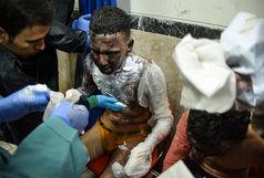 ۸۰ نفر در قزوین بر اثر حوادث مرتبط با چهارشنبه آخر سال مصدوم شدهاند