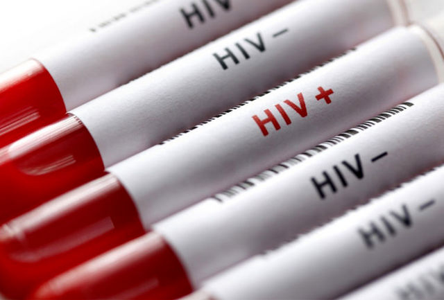 وضعیت پیوند در مبتلایان به اچ آی وی