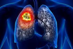چگونه سرطان ریه و ابتلا به ویروس کرونا را از یکدیگر تشخیص دهیم؟