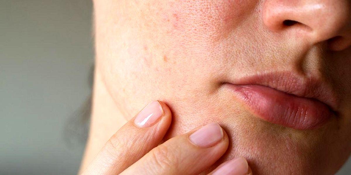 کارهای عادی که باعث مسدود شدن منافذ پوست میشوند