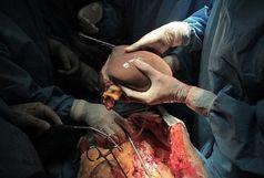 هشت عضو 2 بیمار مرگ مغزی شده در زنجان به افراد نیازمند اهدا شد