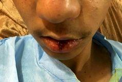 جزییات کامل حادثه تنبیه بدنی دانشآموز جیرفتی از زبان برادر دانیال