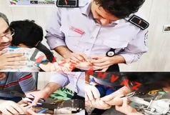 رها سازی انگشت دختر بچه ۴ ساله از شی حلقه بُرنده
