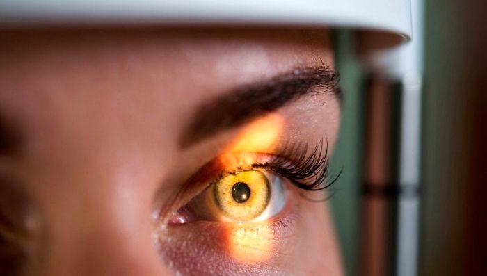 بیماری ملانوم چشم چیست؟