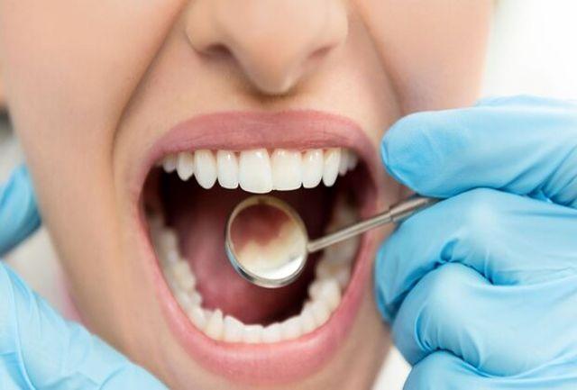 عمر مفید ایمپلنتهای دندانی ۱۰ سال است