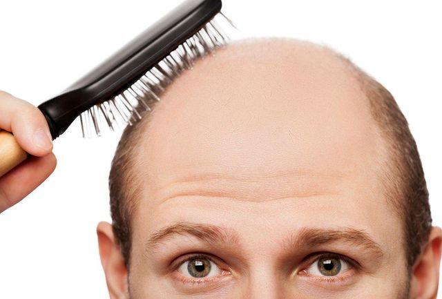 درمان ریزش مو با بررسی هورمون استرس