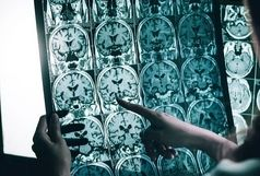 درمان جدیدی که به توقف آلزایمر کمک کند