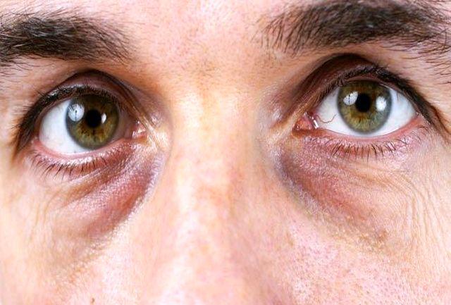 دلایل تیرگی زیر چشمها