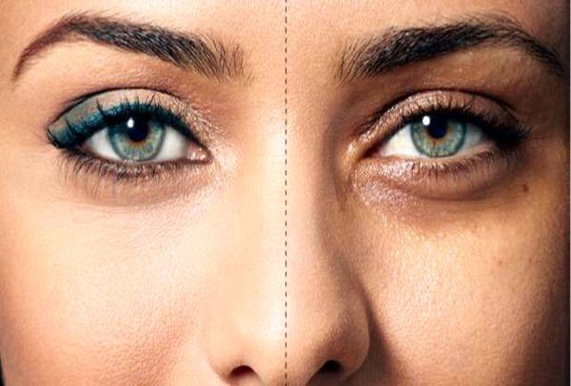 روشی معجزه آسا برای از بین بردن سیاهی دور چشم