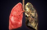 از نشانه های مرگبارترین سرطان جهان چه میدانید؟