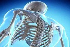 بدترین مواد غذایی برای سلامت استخوانها