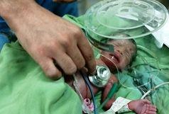 نجات جان مادر و نوزاد از مرگ