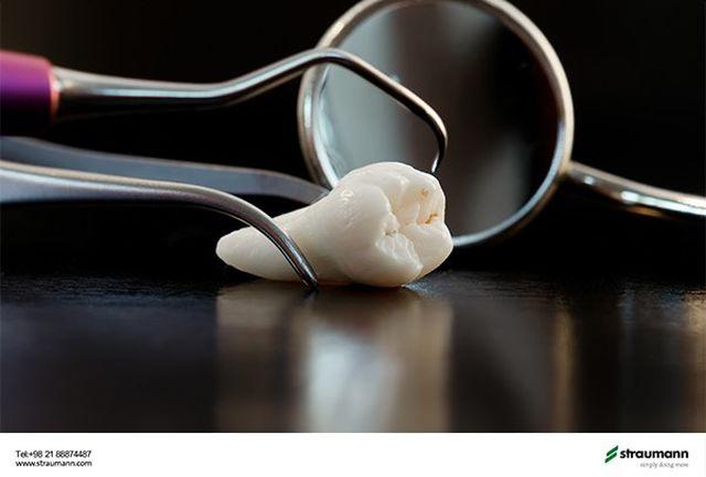 شرایط لازم برای کاشت ایمپلنت بلافاصله پس از کشیدن دندان چیست؟