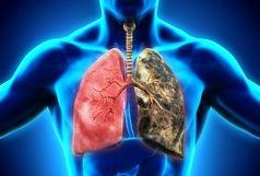 ۲ تغییر غذایی برای جلوگیری از سرطان ریه