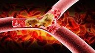 کلسترول خون را با کمک این خوراکی به زانو درآورید