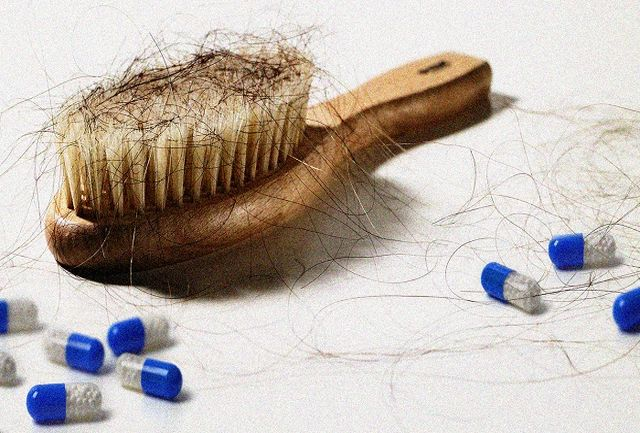 با این 2 مکمل ها برای همیشه با ریزش مو خداحافظی کنید