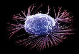 عوامل محافظ در پیشگیری از سرطان پستان کدامند؟