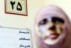 اسیدپاشی مجدد در تبریز