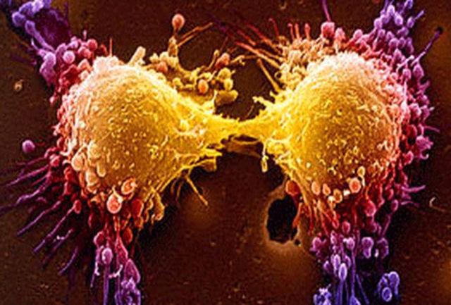 ایمنی درمانی؛ روشی انقلابی در درمان سرطان خون