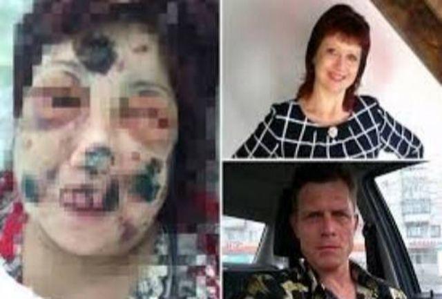 نامزد وحشی صورت زن جوان را جوید! + عکس