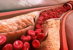 شش علامت که نشان دهنده سطح بالای کلسترول خون است