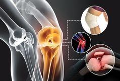 تزریق سم بوتولینوم (بوتاکس)  در درمان آرتروز موثر است/کاربرد بوتاکس در درمان آرتروز