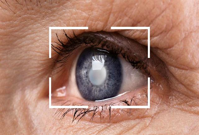 پس از جراحی آب مروارید باید از لنز استفاده کنیم؟