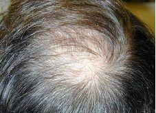 علت اصلی ریزش موهای شما حتما یکی از این 20 دلیل است! + راه حل