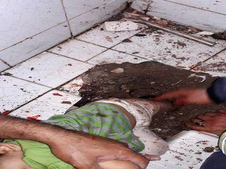 رهاسازی پای دختر بچه 2 ساله از سنگ سرویس بهداشتی