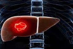 ارتباط میان بیماری کبد چرب و این سرطان