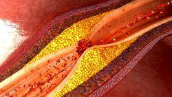 این پروتئین از حمله قلبی جلوگیری می کند!
