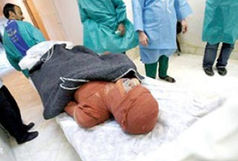 مرگ و میر ناشی از  سوختگی در  استان اصفهان 12.8 درصد کاهش یافت