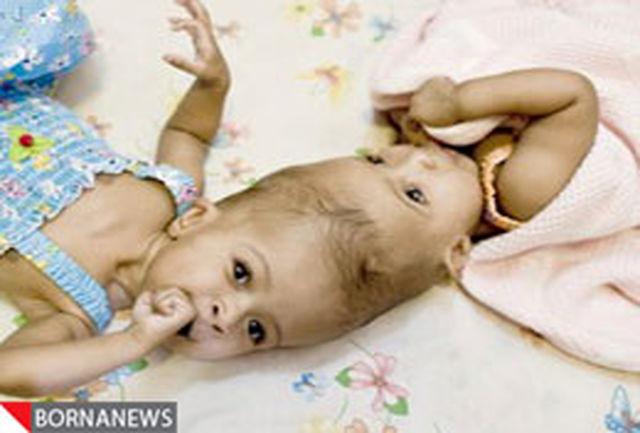 جداسازی موفقیت آمیز لاله و لادن سودانی+عکس