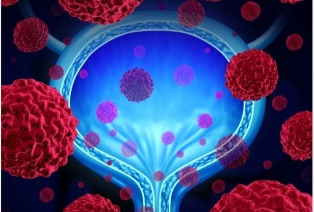 اسکنر جدید برای شناسایی سرطان مثانه