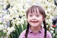 لزوم توجه ویژه به معلولان در بودجه 98/ بیماران سندروم دان مظلوم واقع شده اند