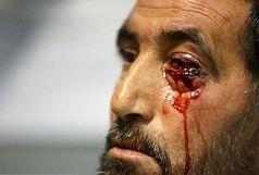 چشم ؛ آسیب پذیرترین عضو در برابر مواد محترقه