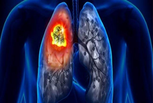 کشف یک راه جدید برای شناسایی زودهنگام سرطان ریه