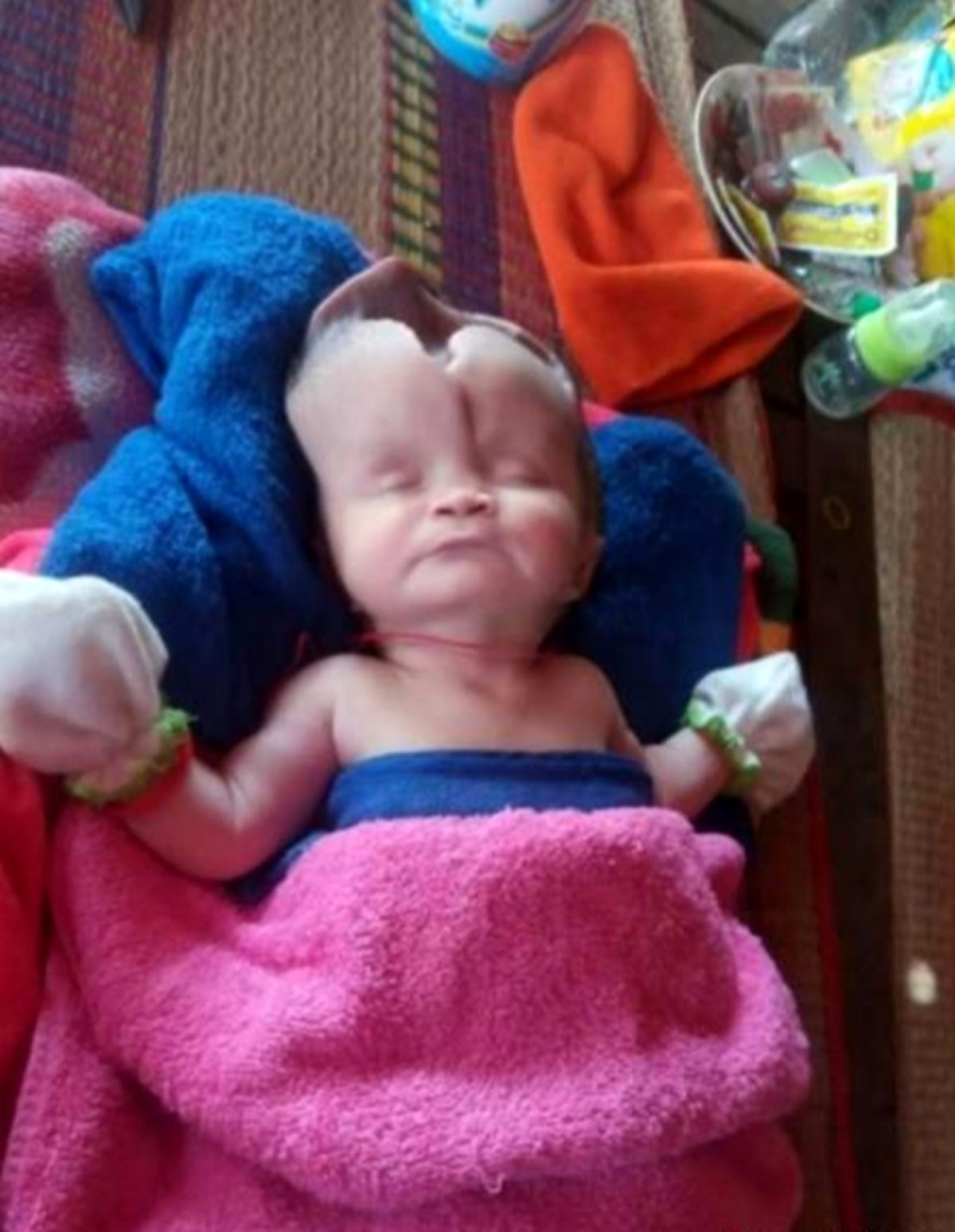 تولد نوزادی عجیب با شکافی ترسناک روی جمجمهاش!+  عکس