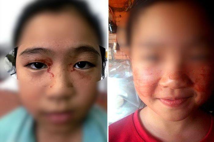 این دختر خون عرق میکند! + عکس