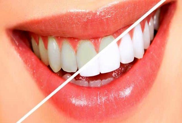 ادویه ای برای سفید کردن دندان ها!
