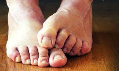 درمان ترکهای پا