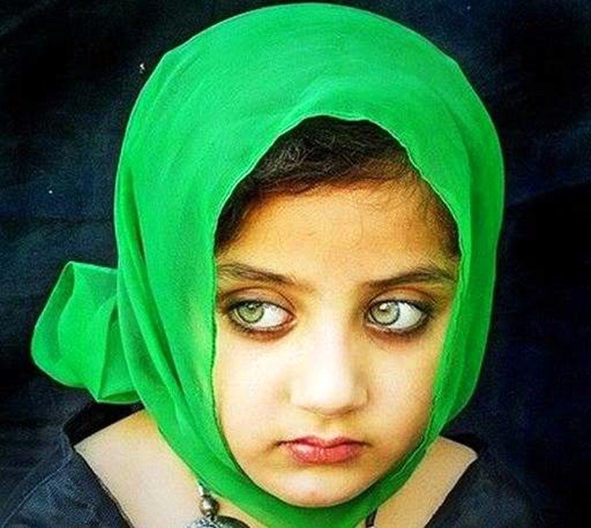 این دختر بچه زیباترین چشمهای جهان را دارد + عکس