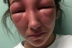وحشتناک شدن چهره این زن بعد از بوتاکس قلابی + عکس