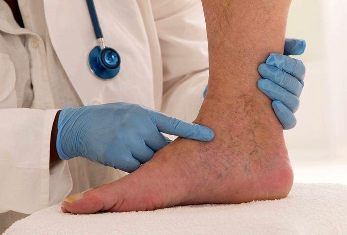 عوامل اکتسابی و ارثی ایجاد لخته های وریدی خون
