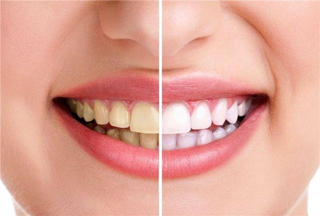 مشکلات دندانی چگونه به سکته مغزی مربوط می شوند؟