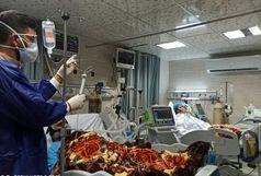 آخرین و جدیدترین آمار کرونایی استان ایلام تا 10 مرداد 1400