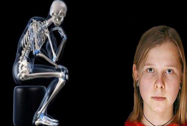 چشمان عجیب این دخترجوان اشعه ایکس دارد+عکس