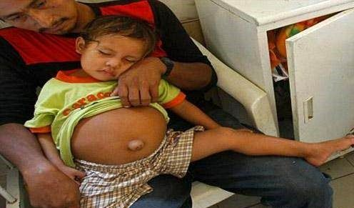 بارداری عجیب دختر 3 ساله + عکس